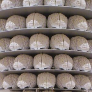 Katharina Fritsch - Display Stand With Brains